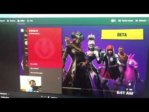 How To Fix Fortnite On Xbox ( Fortnite Not Working )
