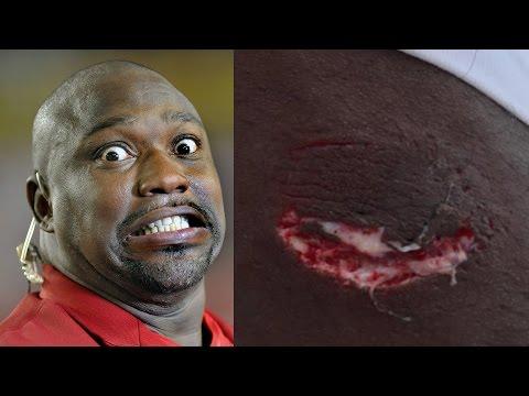 Warren Sapp Attacked By Shark