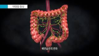 대장암의 증상