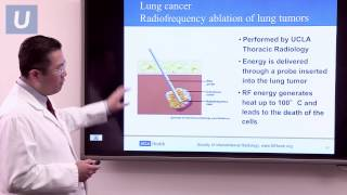 Treatment for Lung Cancer | #UCLAMDChat Webinars
