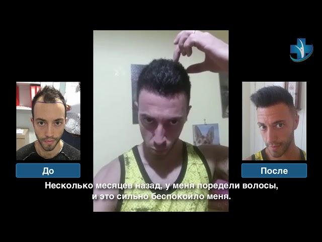 Пересадка волос до и после - Пересадка Волос в Турции - Доктор Oyku Celen