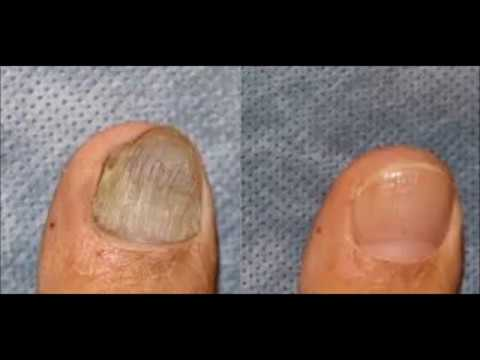Can You Use Apple Cider Vinegar For Toenail Fungus Key Pro
