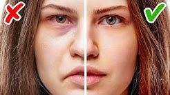 11 Zeichen für Gesundheitsprobleme, erkennbar an deinem Gesicht