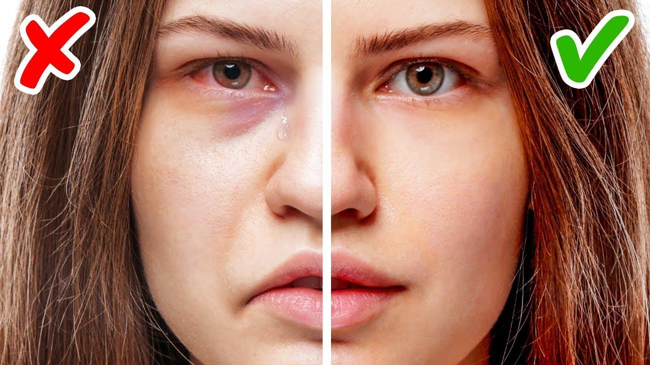 Wie wird man dicker im gesicht | Abnehmen im Gesicht: 9