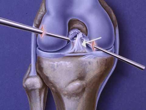 Anterior Cruciate Ligament (ACL) Repair
