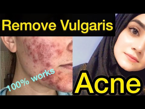 How To Remove Pimples Overnight Acne Treatment Best Home