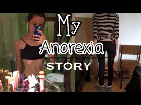 My Anorexia Story in pictures/AN story