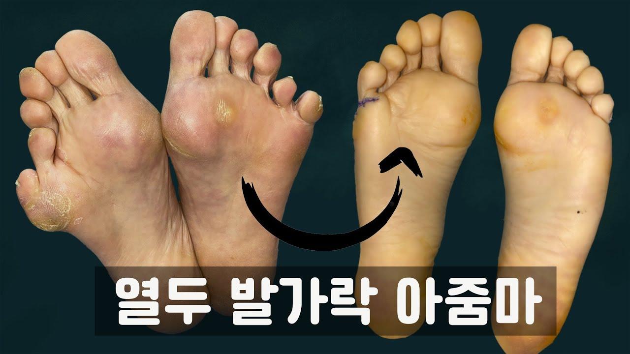 [발 편해진 이야기] 12개의 발가락으로 49년을 살아야 했던 선천적 다지증 환자의 삶과 치료