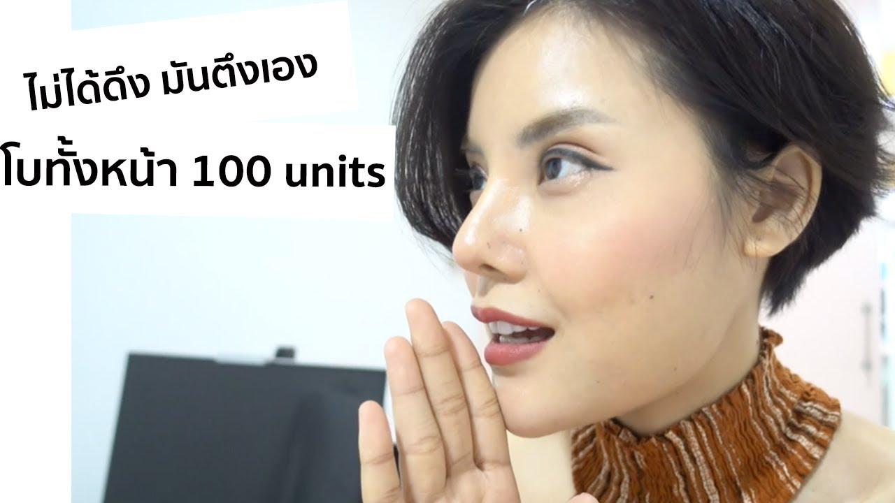 [รีวิว] ฉีดโบลดกราม ลดริ้วรอย เหมา Botox ทั้งหน้า 100 ยู   Majista Clinic
