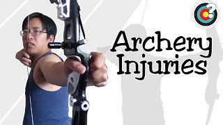 Archery | Injuries and Overbowing