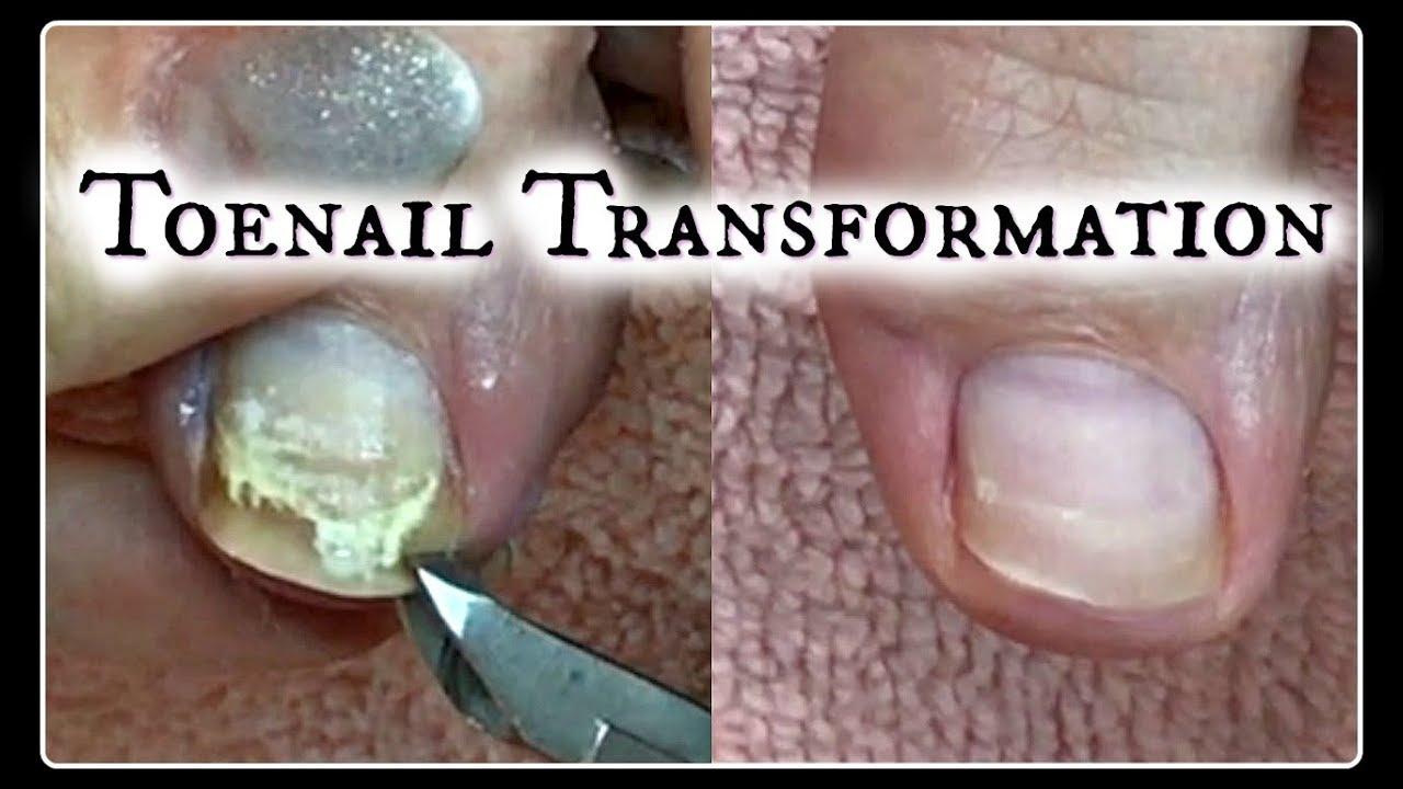 👣 Pedicure Tutorial Toenail Transformation and Time Saving Tips ...