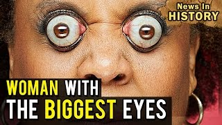 The Biggest Eyes in the World: Kim Goodman - News In History