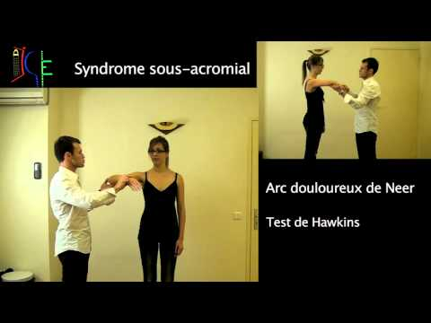 Conflit sous acromial impingment syndrom
