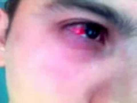Derrame ojo  YouTube