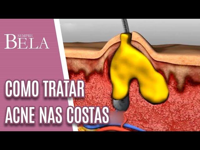 Bacne: Como Tratar Espinhas nas Costas - Sempre Bela (10/03/19)