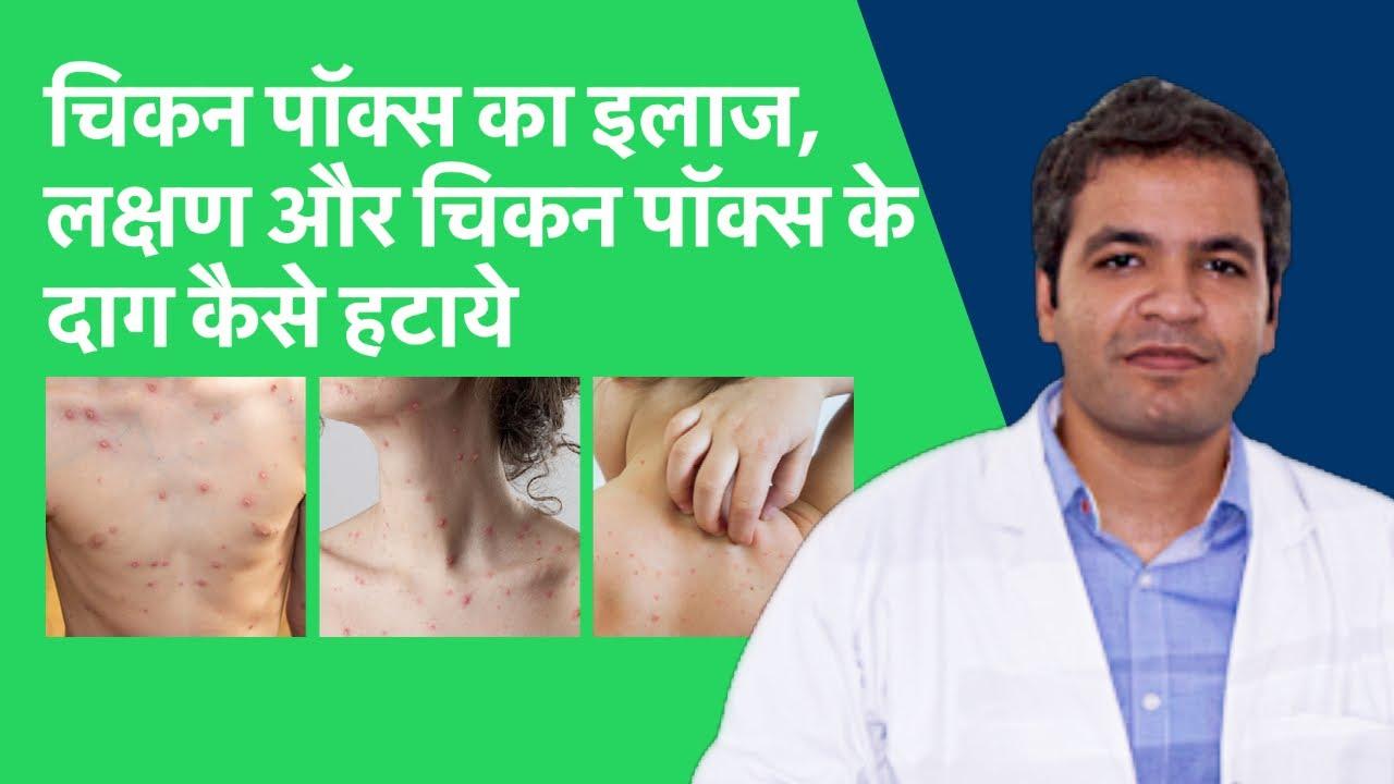 Download चिकन पॉक्स का इलाज | चिकन पॉक्स के लक्षण | chicken pox ke daag kaise mitaye | Chicken pox in Hindi