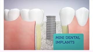 Arlington Dental Associates - Mini Dental Implants in Arlington Heights, IL
