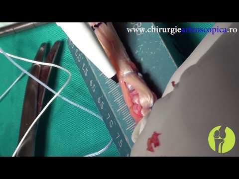 Artroza, tratamentul cu unguent al artritei și utilizarea lor