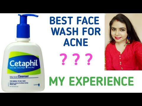 cetaphil mot acne