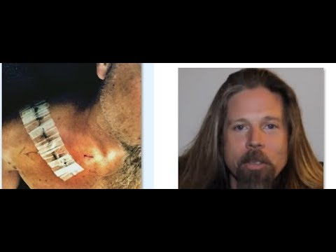 Lamb of God's Chris Adler releases details of motorcycle accident that kept him from drumming