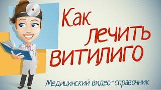 видео Лечение витилиго народными средствами