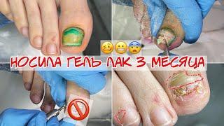Пустота под ногтем Травма ногтя и онихолизис