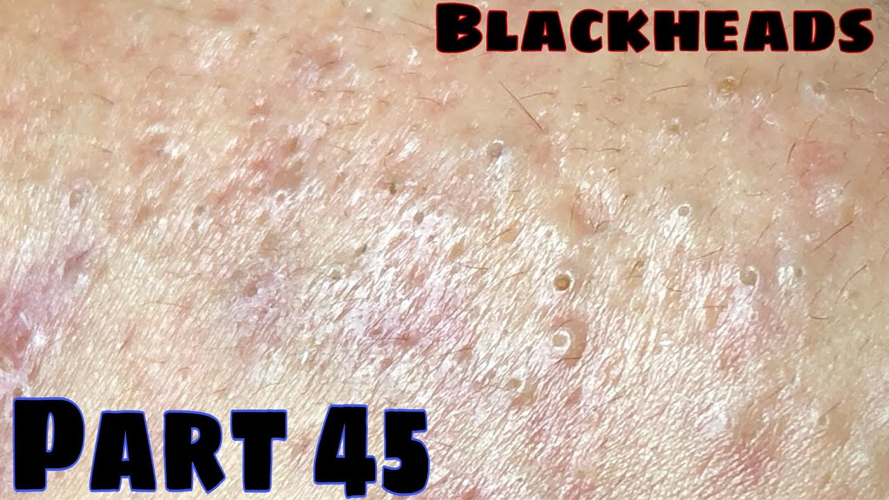 Get rid of all of them .Help this girl more confident   PART 45   B'Young Spa Quyet Hair