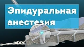 Эпидуральная анестезия. Epidural Anesthesia 3D