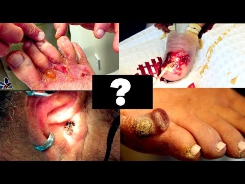 My Top 5 SHOCKING VIDEOS Of 2015 | Dr. Paul (Warts, Rashes, Ear Wax, Nail Removal, Neck  Abscess)