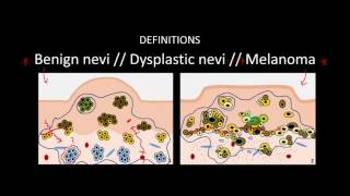 Introduction to Skin Cancer #3: Overview of Nevi and Melanoma