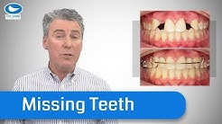 How Orthodontists deal with Missing Teeth - Save yourself years of pain, and cost.