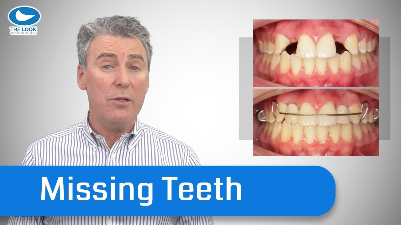 How Orthodontists deal with Missing Teeth - Save yourself years of pain,  and cost