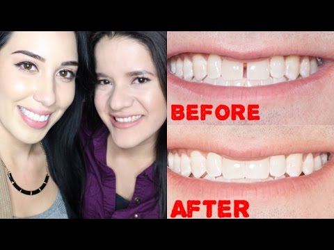 Clear Braces... AT HOME ??! Review | Before & After | Cost