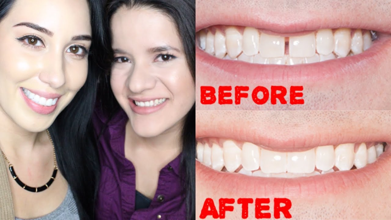 Clear Braces At Home Review Before Amp After Cost