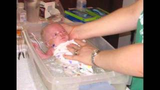 1-Pound Miracle Baby...