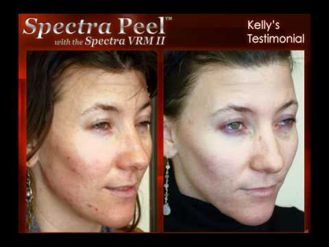 Carbon Laser Peel Fresh New Approach To Treating Acne