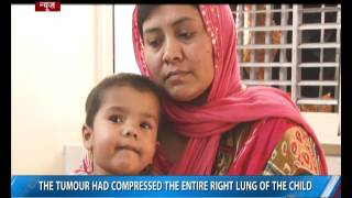 Indian doctors remove tumor from Afghan toddler's chest