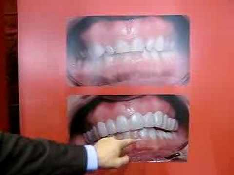 Snap On Smile How To Save Money And Do It Yourself