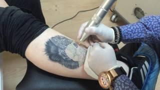 Dövme Silme işlemi Nano Teknoloji Takip edin yeni videolara ulaşabilirsiniz