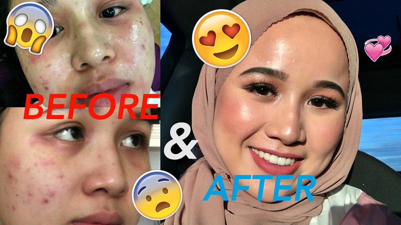 The Skincare Routine That Fixed My Skin Youtube