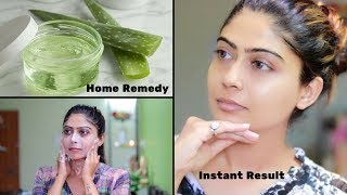 How To Do Aloe Vera Facial For Clear, Glowing And spotless Skin | Rinkal Soni