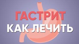 ГАСТРИТ что делать? | Симптомы | Лечение | Диета | Хронический Обострение | Как лечить | Доктор Фил