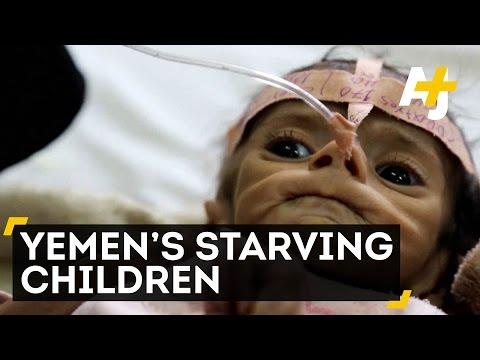 Yemen's Children Continue To Starve And Die