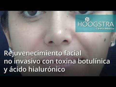 Rejuvenecimiento facial no invasivo con toxina botulínica y ácido hialurónico (18063)