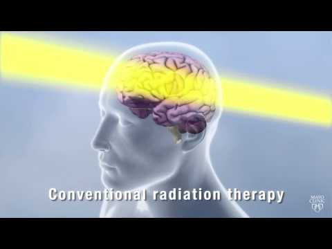 Proton Beam Therapy: Conquering Cancer