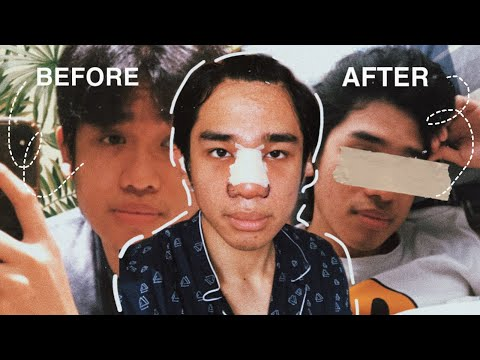 nose job healing & recovery**MADUGO | Belo Philippines | my