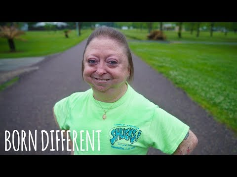 I'm 30 But Look 60 | BORN DIFFERENT