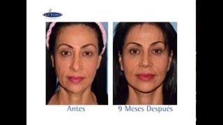 Estiramiento Facial y Bolsas de los ojos, Face lift and eye fat pads bogotá - colombia