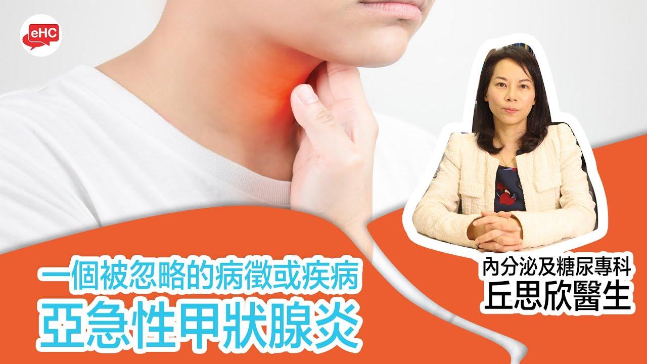 【亞急性甲狀腺炎】一個閉被忽略的病徵或疾病