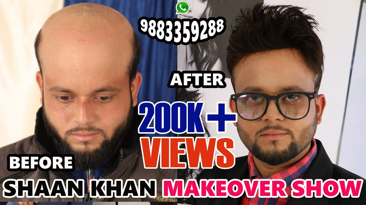SHAAN KHAN MAKEOVER SHOW - NON SURGICAL HAIR TRANSPLANT EP10